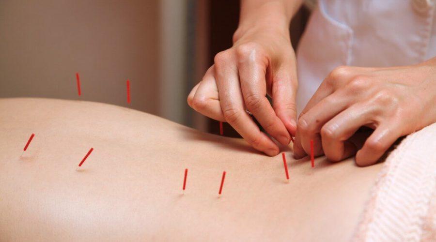 La acupuntura podría reducir el dolor articular causado por el tratamiento en pacientes con cáncer de seno (mama)